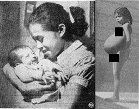 The Story Of Lina Medina- The World's Youngest Mother